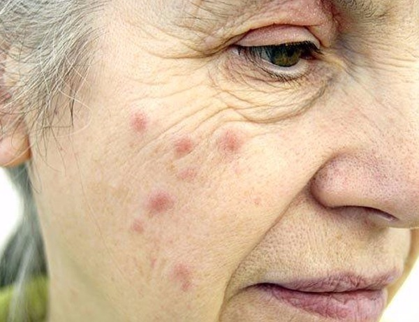 Skin Diseases